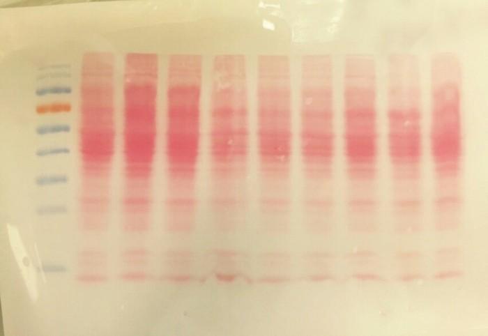 16. Detección de proteínas